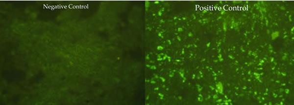 anaplasma_phagocytophila