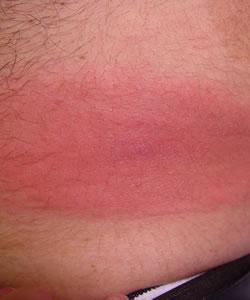 dermatlas _solid lesion